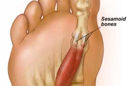 Dor lombar alívio do quadril do lado direito